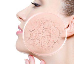 Ce qui provoque le dessèchement de la peau