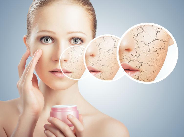 Une peau déshydratée, vous pouvez facilement supprimer